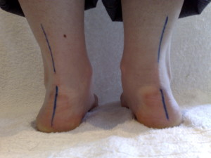 pronated feet
