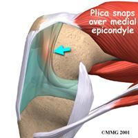 Plica-Syndrome
